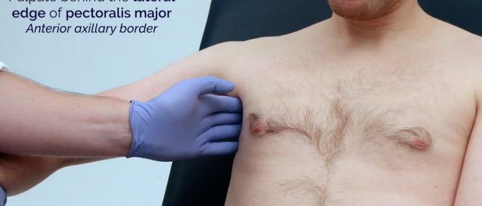 Palpate the lateral edge of pectoralis major
