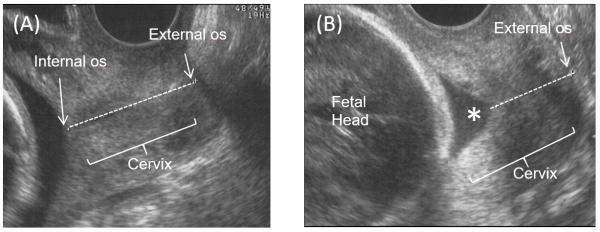 cervical length, transvaginal ultrasound