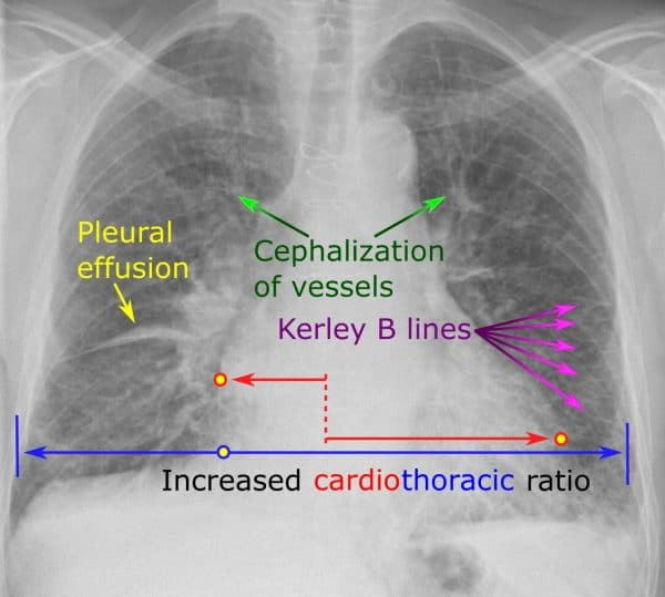 Signs of heart failure of chest x-ray