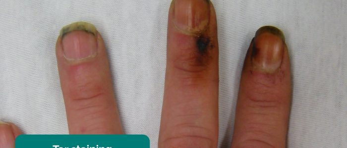 Tar staining on the hands