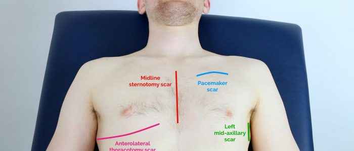 Types of thoracic scars