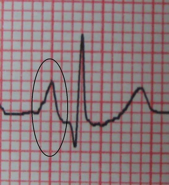 cor pulmonale ecg