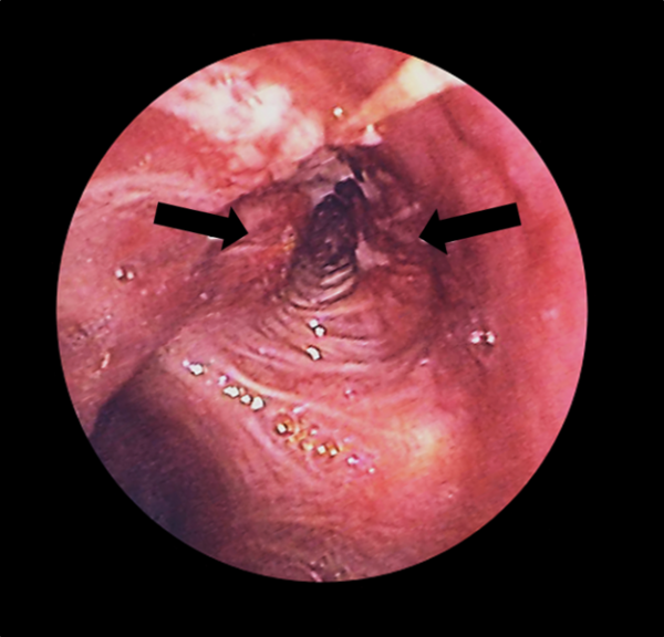 Bronchoscopy of the left bronchus, showing two tumours (arrows)