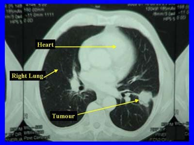 CT Chest showing left-sided lung cancer