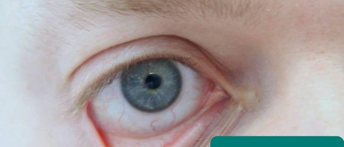 Conjunctival pallor