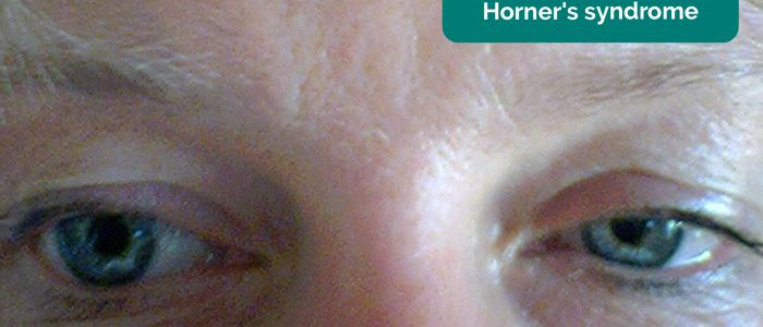 Miosis in Horner's syndrome