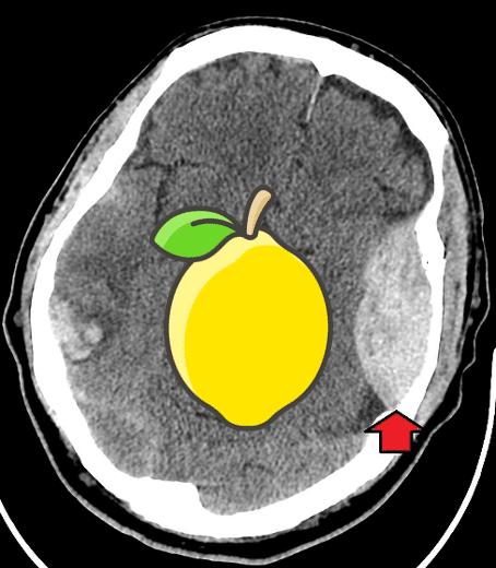 Epidural haematoma