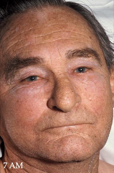 Superior Vena Cava Obstruction, before treatment