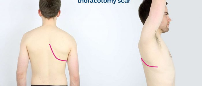 Posterolateral thoracotomy scar