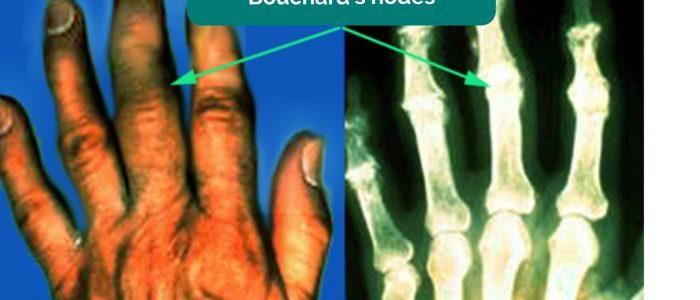 Bouchard's nodes