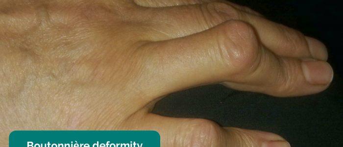 Boutonnière deformity