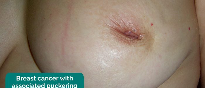 Breast cancer with associated nipple retraction and puckering