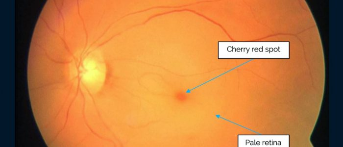 Cherry red spot in central retinal artery occlusion
