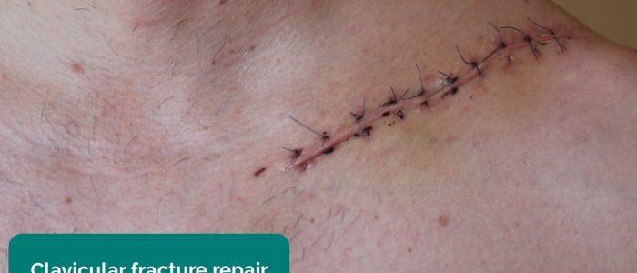 Clavicular fracture repair