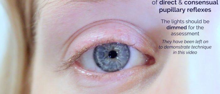 Assess consensual pupillary reflex