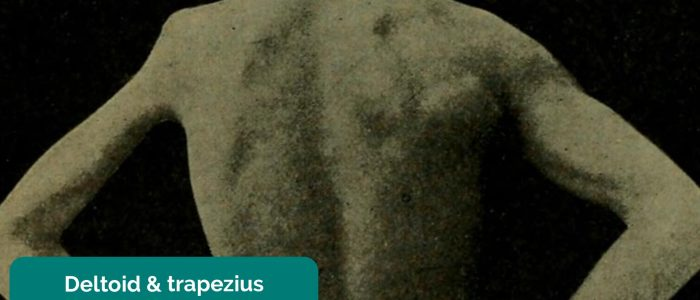Deltoid and trapezius muscle wasting