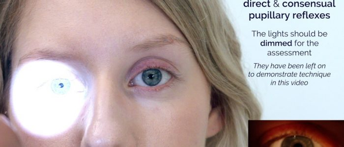 Assess direct and consensual pupillary light reflexes