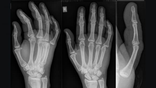 Joint dislocation of the metacarpophalangeal joint of the 5th digit 1