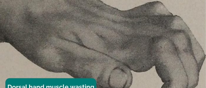 Dorsal hand muscle wasting
