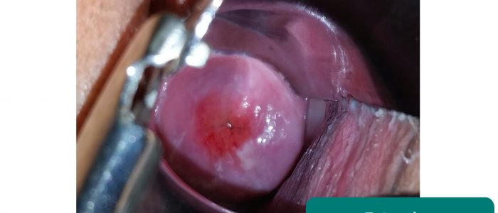 Cervical ectropion