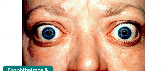 Exophthalmos and lid retraction
