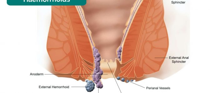 Illustration of haemorrhoids