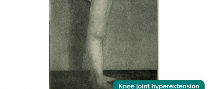 Knee joint hyperextension with associated effusion