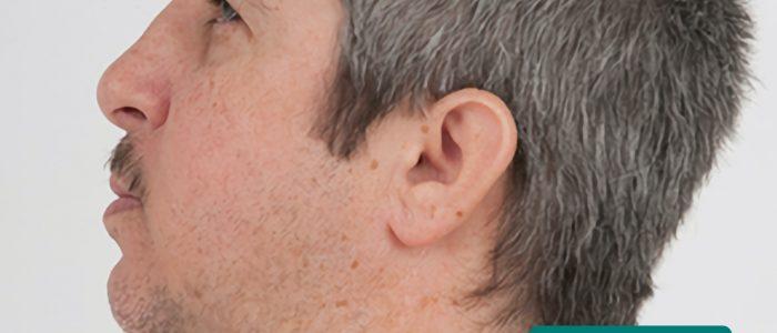 Low-set ears