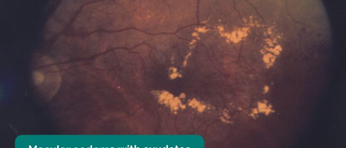 Macular oedema with exudates