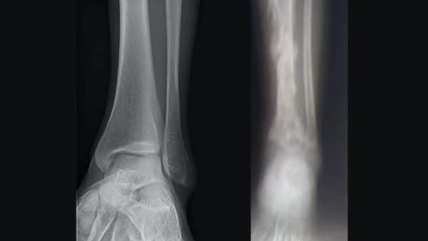 Healthy cortex and trabeculae vs osteomyelitis
