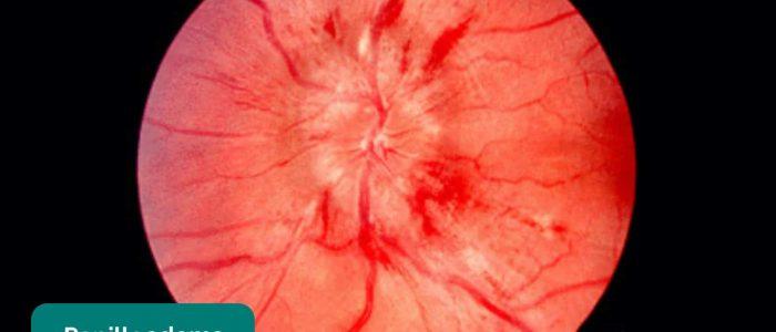Papilloedema causing blurred optic disc margin