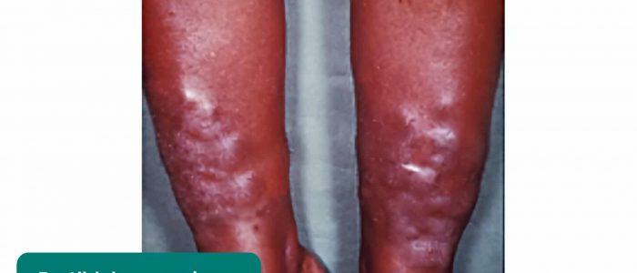 Pretibial myxoedema