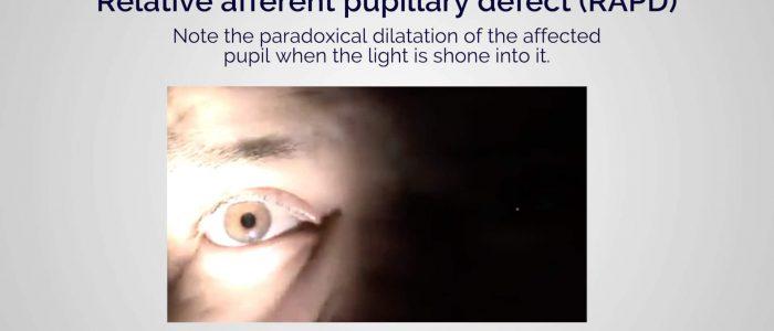 Relative afferent pupillary defect (RAPD)