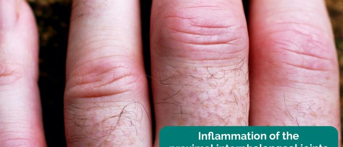 Inflammation of the proximal interphalangeal joints