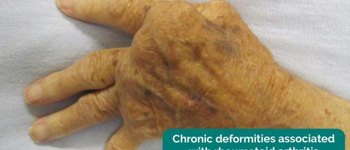 Chronic deformities associated with rheumatoid arthritis