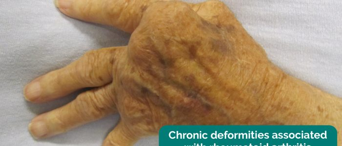 Abnormal hand posture secondary to chronic rheumatoid arthritis