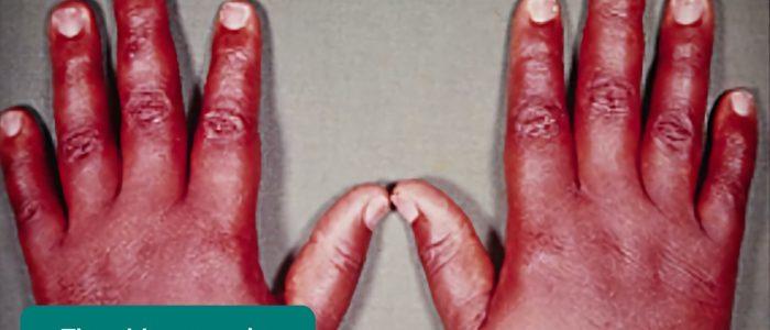 Thyroid acropachy