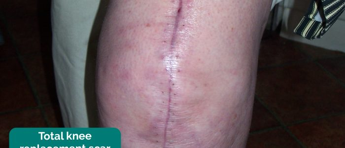 Total knee replacement scar