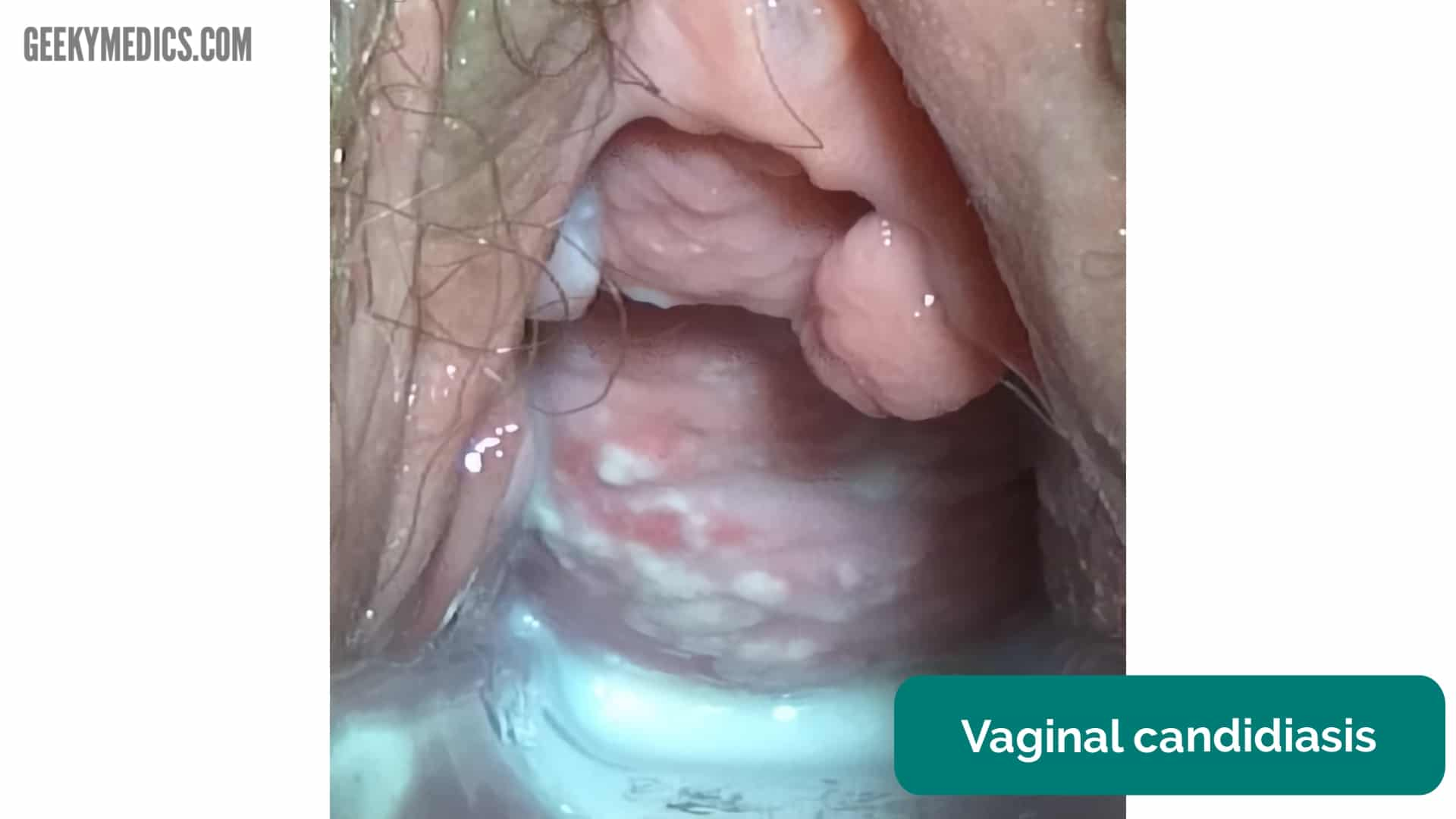 Effects Of Vaginal Candidiasis On Pregnancy Outcome In Zaria