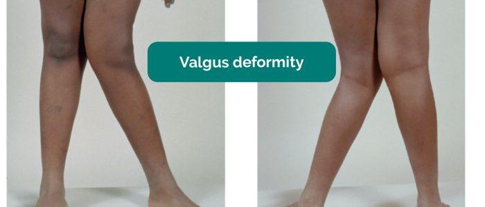Valgus deformity of the knee