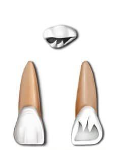Maxillary incisor