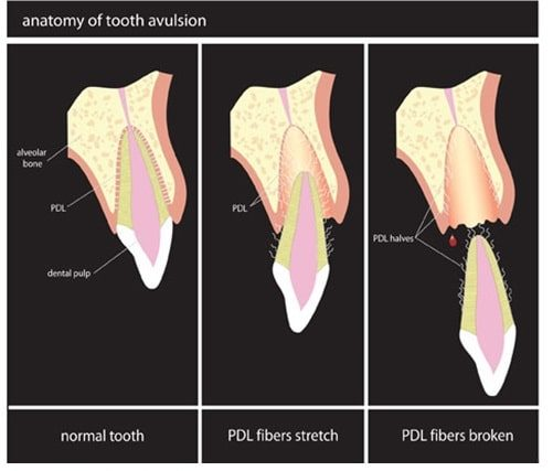 Tooth avulsion diagram