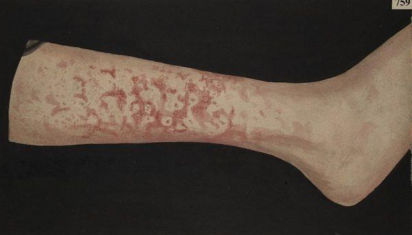 Leg with erythema marginatum