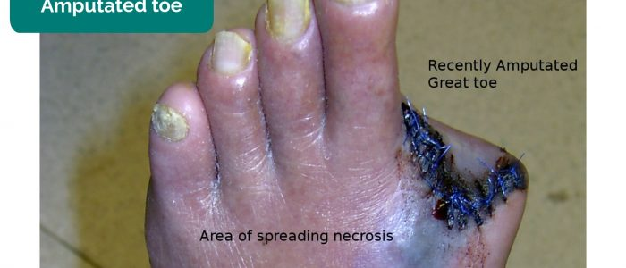Amputated toe secondary to necrosis
