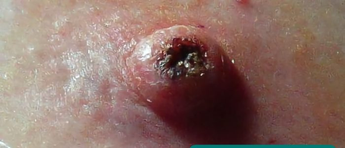 Keratoacanthoma