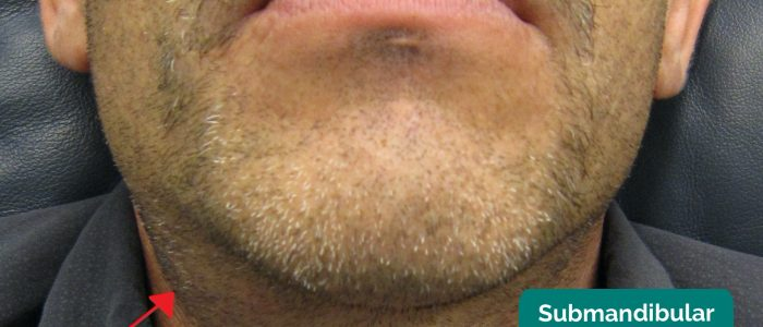 Submandibular gland swelling