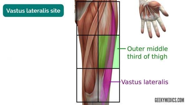 Vastus lateralis intramuscular injection site
