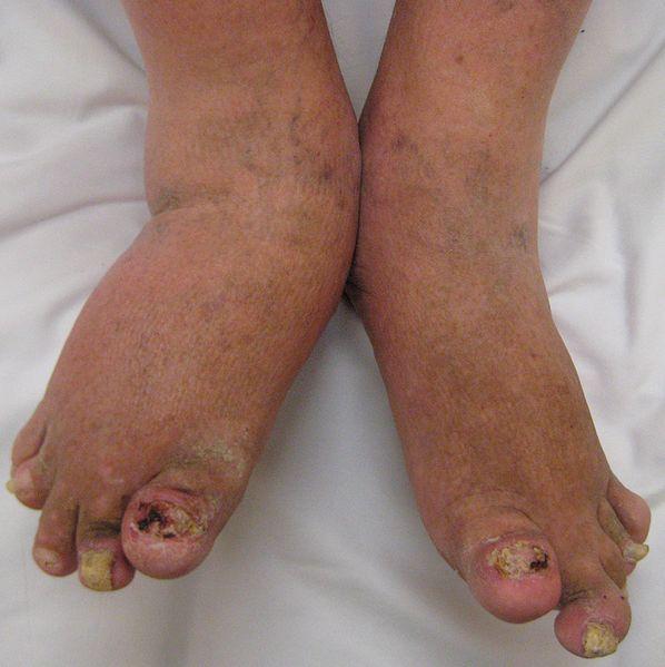 Severe psoriatic arthritis
