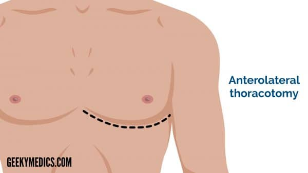 Anterolateral thoracotomy - cardiothoracic incisions