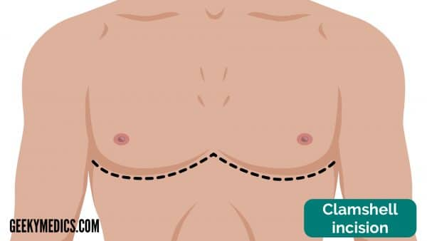 Clamshell incision - cardiothoracic incisions